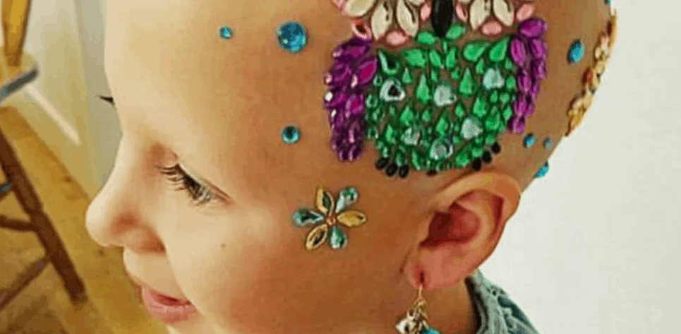 girl with alopecia wins crazy hair day