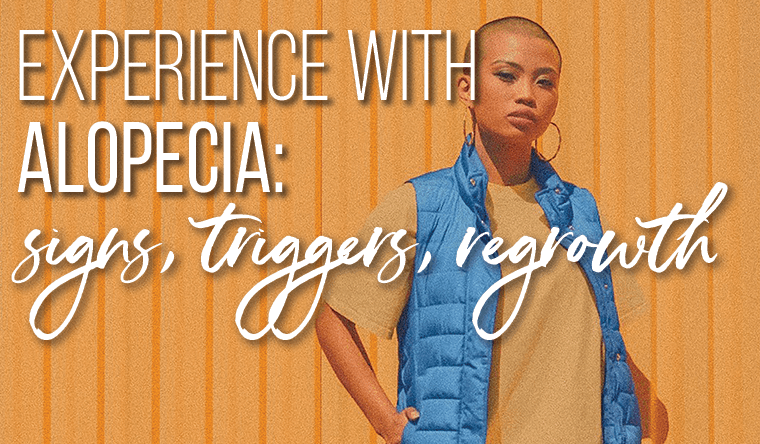 Experience with Alopecia: Signs, Triggers, Regrowth and #AlltheFeels